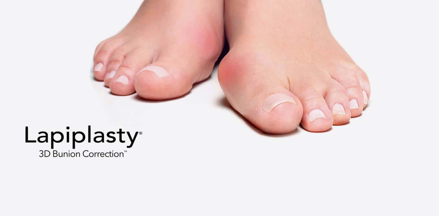 slide-lapiplasty