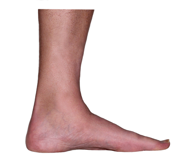 ankle medial inside view