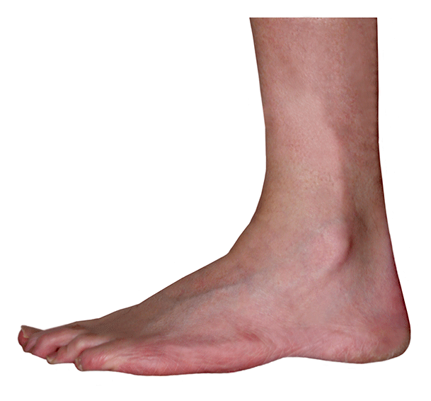 ankle lateral outside view