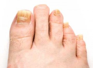 Elderly patient with toenail fungus