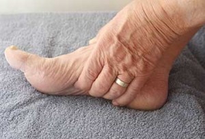Arch Pain | Bottom Of Foot Hurts