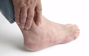 Arthritis In The Foot And Ankle Osteoarthritis Rheumatoid Arthritis Joint Pain Stiff Joints
