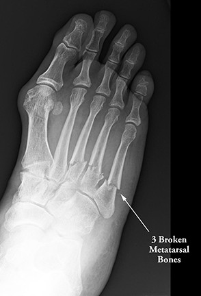broken foot fractured foot