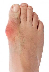 bunion surgery myths