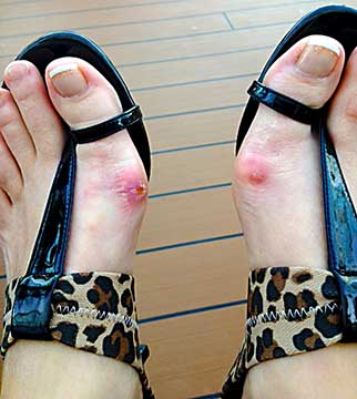 bunion symptoms and treatment