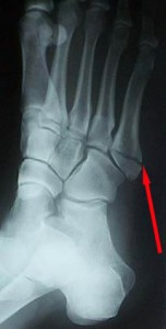 Fifth Metatarsal Fracture