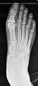 Hallux Rigidus pre-op. Little to no motion in joint