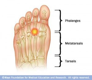 metatarsalgia foot diagram