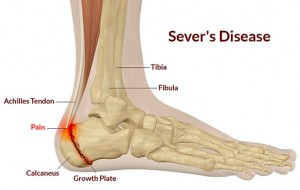 severs disease heel pain in children