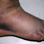 sprained foot at one day wikicommons public domain