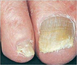 why toenails thicken