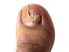 Toenail fungus infection. The toenail becomes yellowed and crumbly at edges