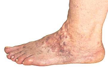 video bolight foot varicose)